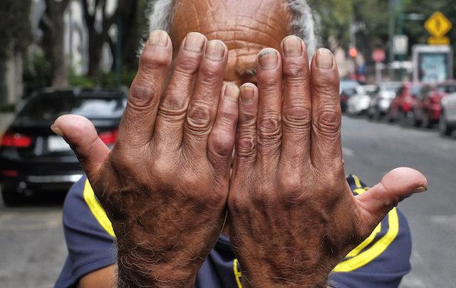 Con terapia molecular, IMSS atiende a pacientes que sufren artritis reumatoide