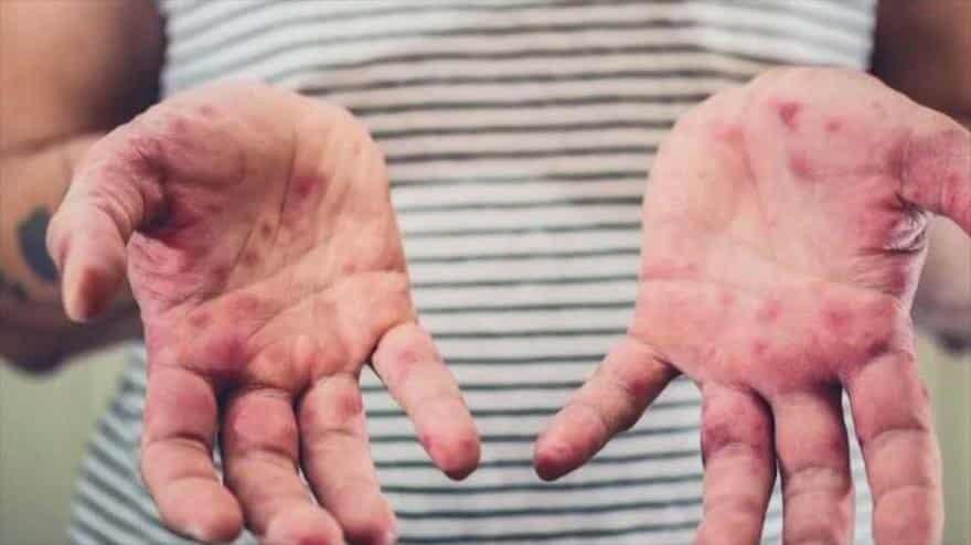 Confirman segundo caso de sarampión en México. Foto: HispanTV